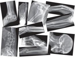 Broken Bone X-Ray