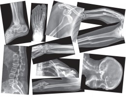 Broken Bone X-Ray